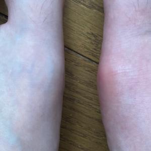 足の親指に激痛が…(><)