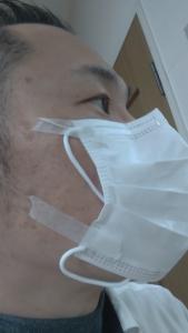 医療用の紙テープをマスクに貼って施術したいと思います