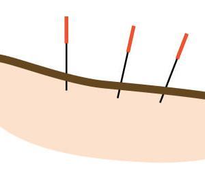 水曜日の営業開始と美容鍼に関するお知らせ♪