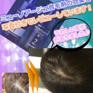 女性の薄毛は治る?~毛根を元気にする育毛剤はこれ~