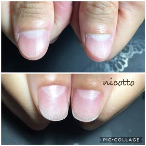 nicottoの深爪メニュー