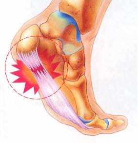 足底筋膜炎のテーピング法 解説