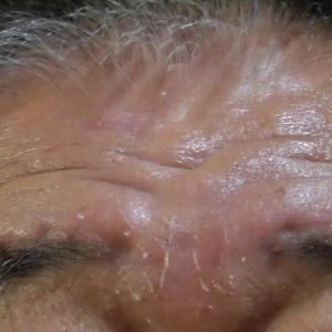 溶接焼けで顔の皮が