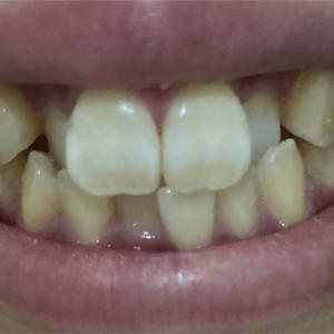 今年から歯科矯正始めました。