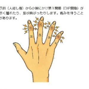 朝起きた時の手のこわばり① まずは整形外科へ