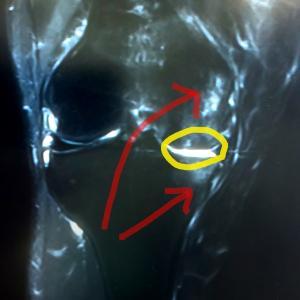膝の痛みの原因(骨内内出血)