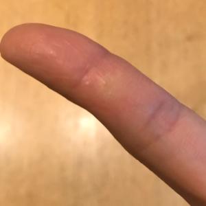 かゆーい!指に小さなプツプツがたくさん