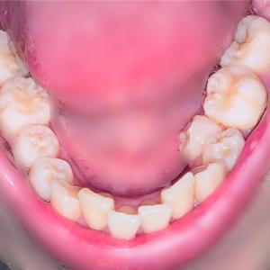 【歯列矯正】抜歯できず