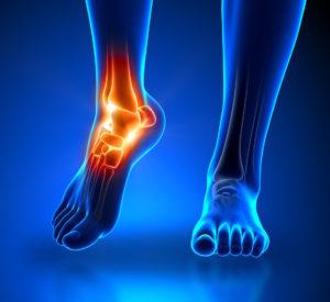 足底筋膜炎対処法