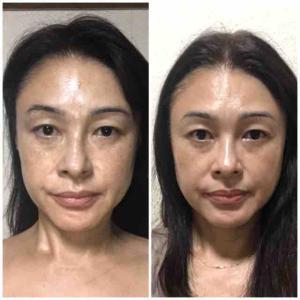 人幹細胞培養液化粧品