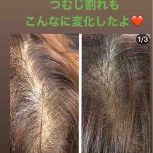 頭髪🍀ふさふさ