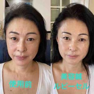 美顔鍼とのコラボ