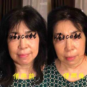 左半顔の施術で⚡️