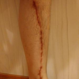 手術して、3ヶ月が経ちました。 画像