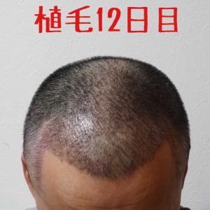 ㊗️2週間 (14日目)