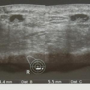 術後1年9か月で超音波検査