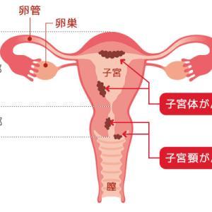 子宮体がん検診について聞いたこと