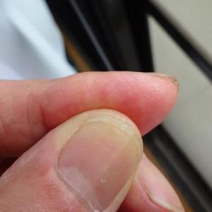 指先に庭の木のトゲが刺さった(2019年9月17日)