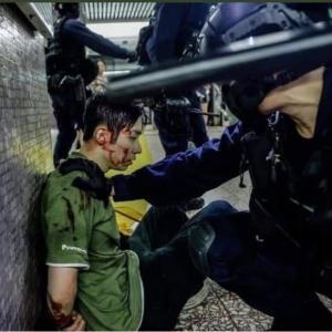 香港の武装警官の暴行画像
