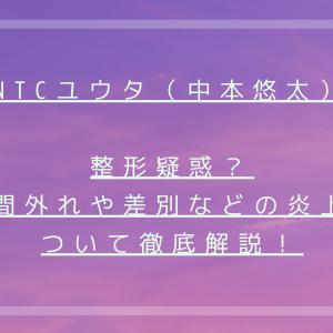 NCTユウタ(中本悠太)顎と鼻整形疑惑?仲間外れや差別などの炎上について徹底解説!