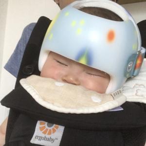 ヘルメット姿を見た旦那の反応(ヘルメット治療3日目)