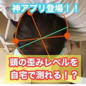 赤ちゃんの頭の歪みレベルを自宅でカンタンに測れる神アプリが登場!(ヘルメット治療中の効果測定にも使えます)