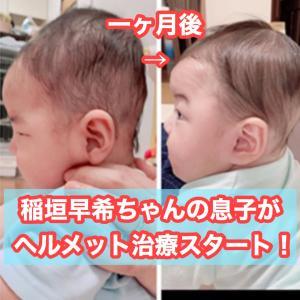 稲垣早希ちゃんのおかげでヘルメット治療が有名に?(りおなり夫婦のYouTubeチャンネルが話題)