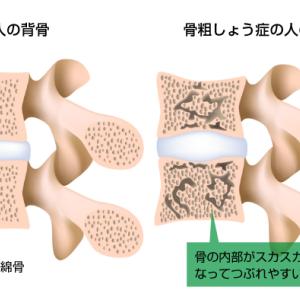 女性に多い骨粗しょう症の予防と治療