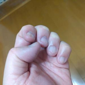 深爪について…