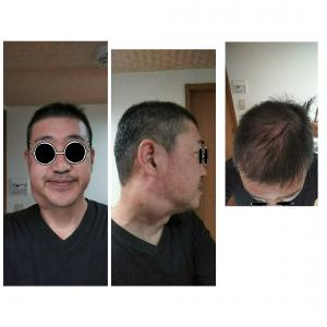 11月6日 がん免疫療法オプジーボ 4回終わって現状