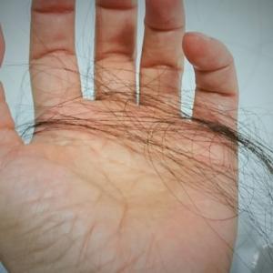 脱毛症による薄毛には男性型と女性特有のものがあり要因は異なる種類について!