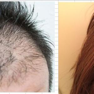 毛髪の乏しい人が簡単に髪が生える改善方法がすごい結果になった