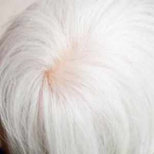 白髪が多い人は薄毛にならないという都市伝説?アホ毛が白髪で生えてきたけれど