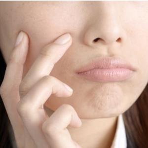 おすすめのコラーゲンサプリ肌荒れ対策に効果