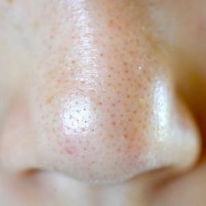 毛穴ケアの基本である洗顔を間違った方法でやっていませんか?