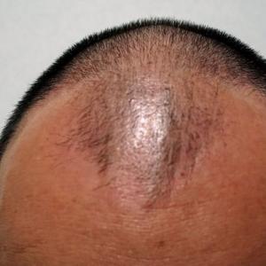 ミノキシジルでないと男性の薄毛の要因であるAGAは改善されない事がわかっている