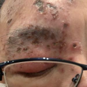 皮膚科、眼科診察
