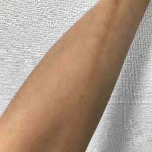 悪性リンパ腫13(閲覧注意)