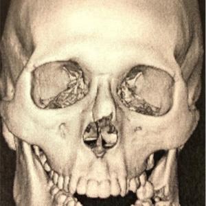 RIZIN 佐々木憂流迦(うるか)顎粉砕骨折 衝撃のレントゲン写真!