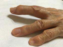 ヘバーデン結節とは|マッサージは効果があるの・原因や予防法は?
