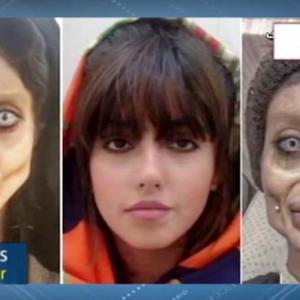 美容整形で「ゾンビ」顔に…有名インスタグラマーが後悔語る イラン