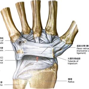 手根管症候群はどの絞扼性神経障害