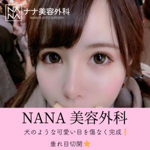 【NANA美容外科】犬のような可愛い目を傷なく完成!垂れ目切開★