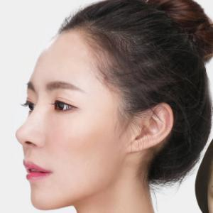 【ラミチェ美容外科】洗練された鼻に改善!団子鼻