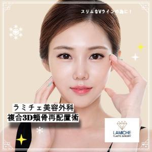 【ラミチェ美容外科】スリムなVラインの為に!複合3D頬骨再配置術