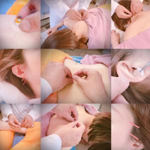 【会津で鍼灸をご利用の方に】