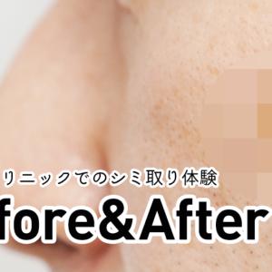 【体験記】シミ取りレーザー治療で顔にできた気になる大きなシミを取ってみた