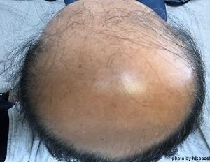 薄毛治療スタート6ケ月後の画像