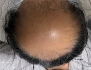 薄毛治療の開始から340日後の画像です