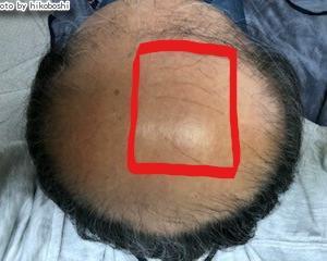 薄毛治療の開始から350日後の画像です